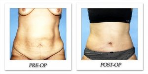phoca_thumb_l_dr-begovic-tummy-tuck-before-after-002