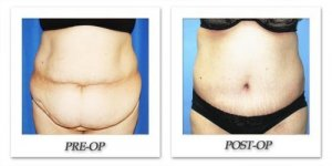 phoca_thumb_l_dr-begovic-tummy-tuck-before-after-004