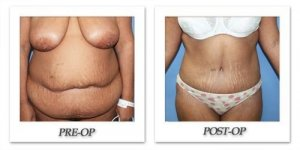phoca_thumb_l_dr-begovic-tummy-tuck-before-after-007