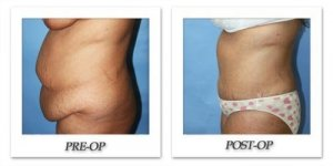 phoca_thumb_l_dr-begovic-tummy-tuck-before-after-008
